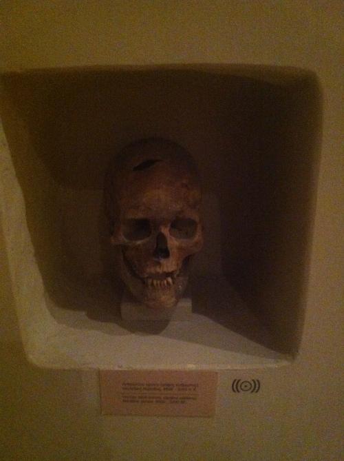 A Bronze Age skull of the animal, Homo sapiens sapiens.